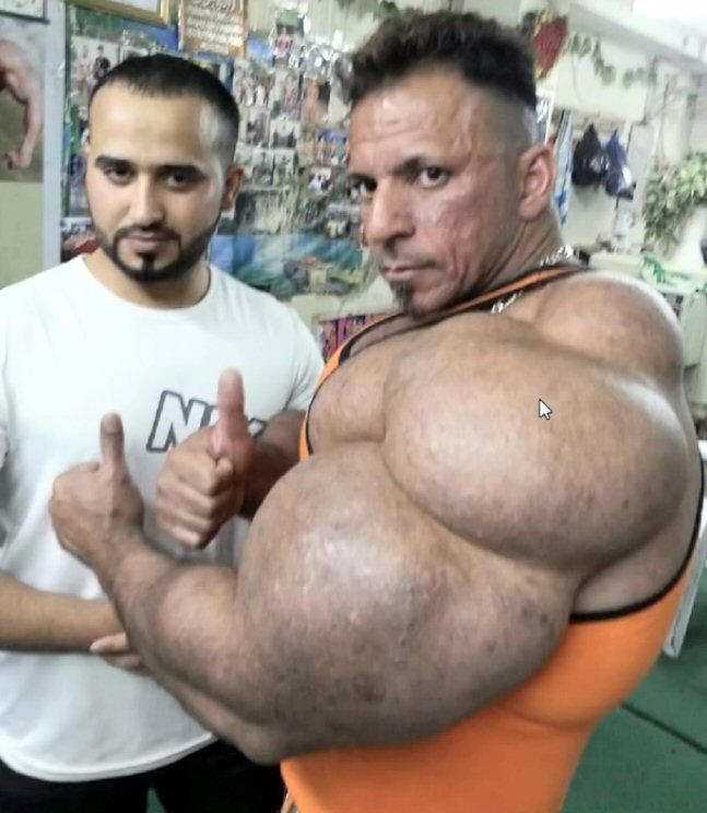What Is Synthol and Is It Good For Me or Bad?
